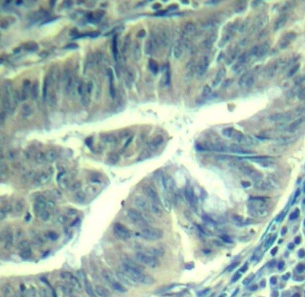 Anti CDK6 (pTyr24) Antibody thumbnail image 2