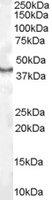 Anti Human CDX2 Antibody gallery image 1