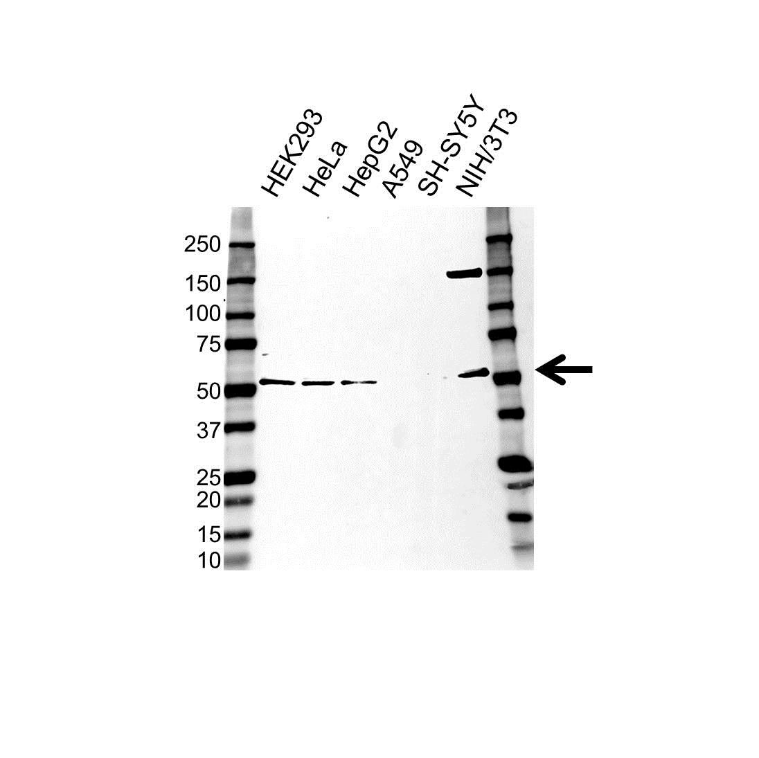 Anti CELF1 Antibody (PrecisionAb Polyclonal Antibody) gallery image 1