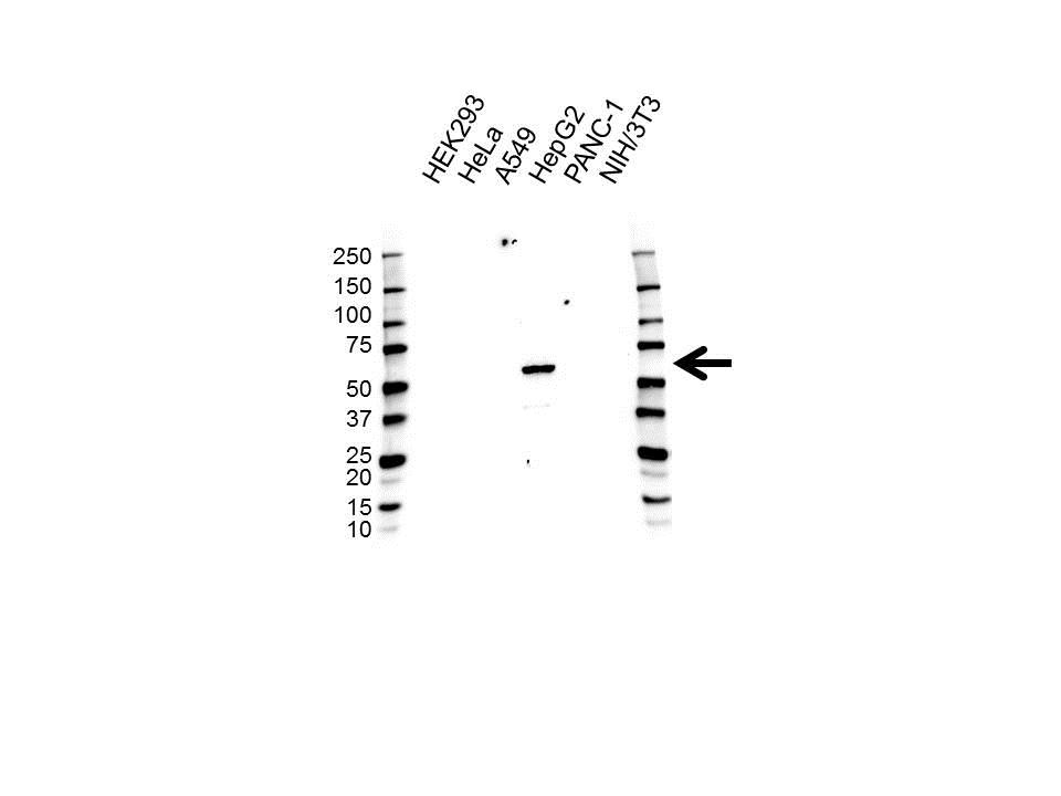 Anti CES1 Antibody (PrecisionAb Polyclonal Antibody) gallery image 1