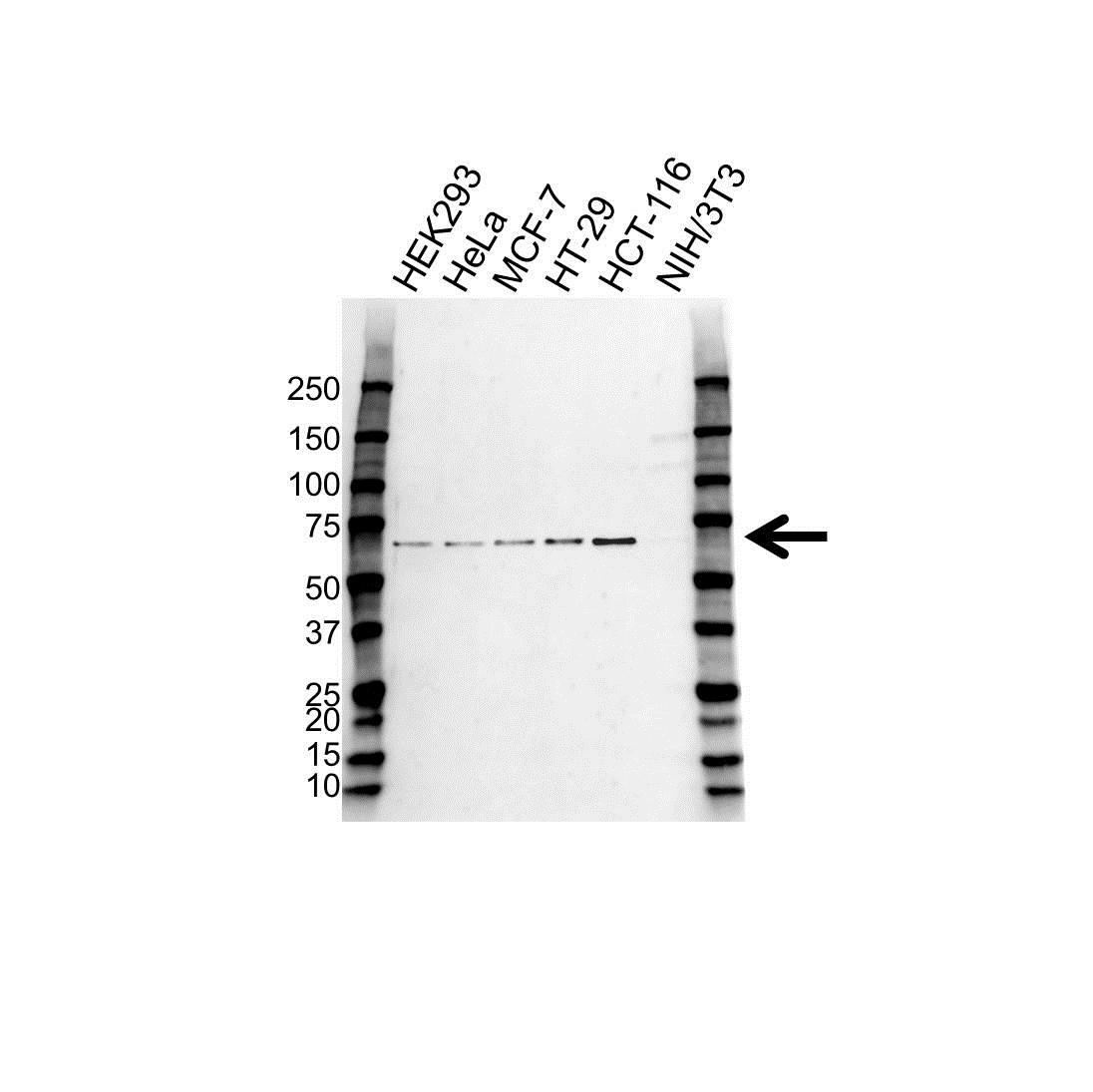 Anti CHK2 Antibody (PrecisionAb Polyclonal Antibody) gallery image 1