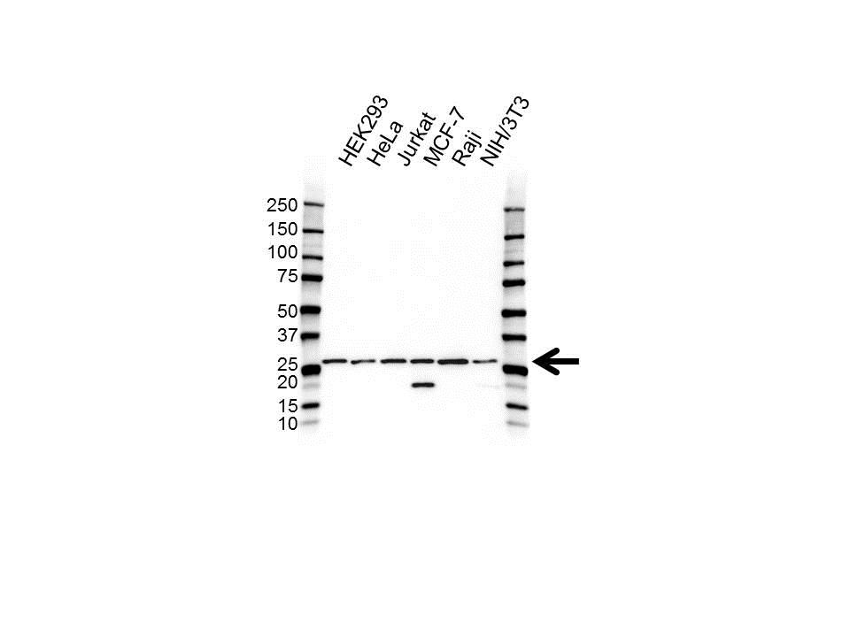 Anti CHMP2A Antibody (PrecisionAb Polyclonal Antibody) gallery image 1