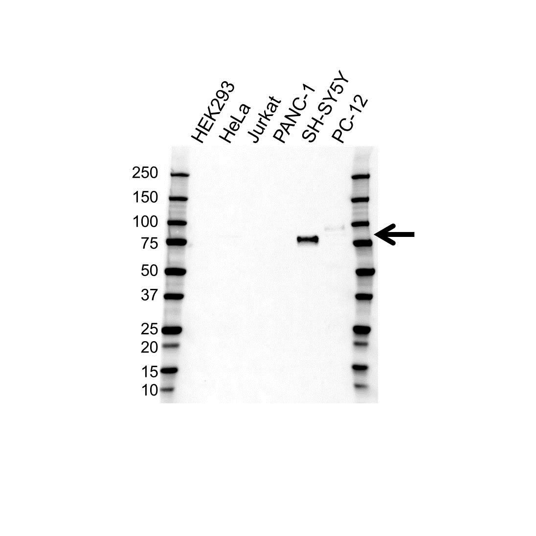 Anti Chromogranin A Antibody (PrecisionAb™ Polyclonal Antibody) gallery image 1