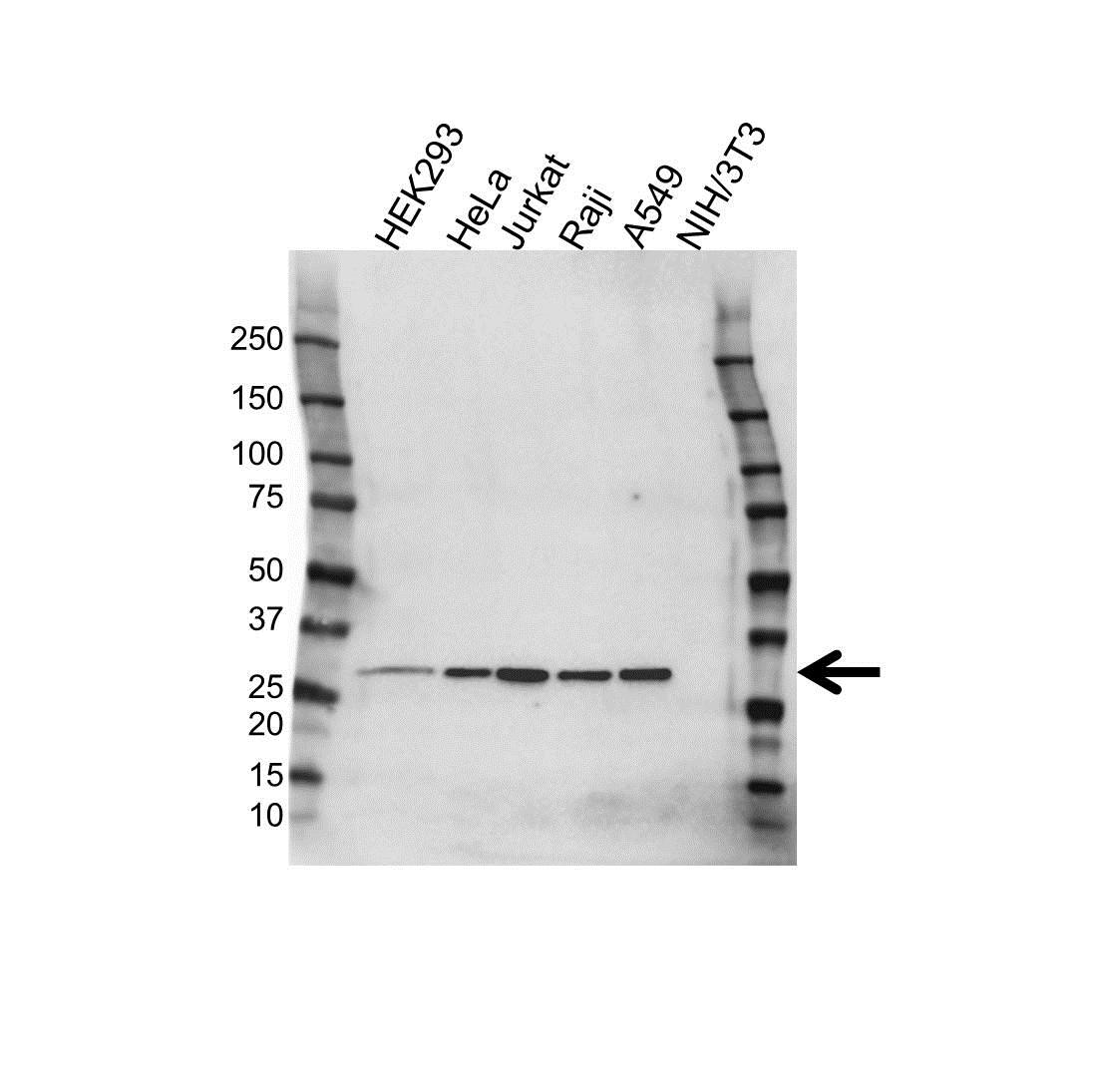 Anti CK1 Antibody (PrecisionAb Polyclonal Antibody) gallery image 1