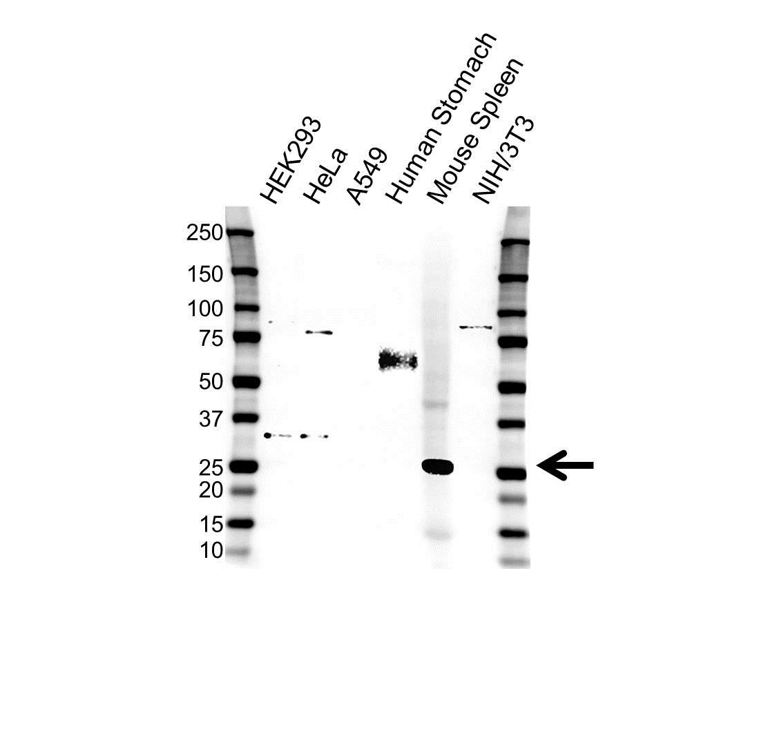 Anti Clathrin Light Chain B Antibody (PrecisionAb Polyclonal Antibody) gallery image 1