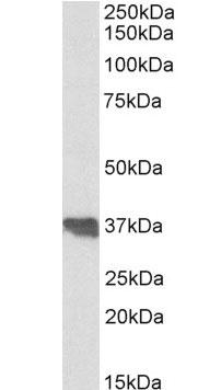 Anti Human Clusterin (C-Terminal) Antibody thumbnail image 1