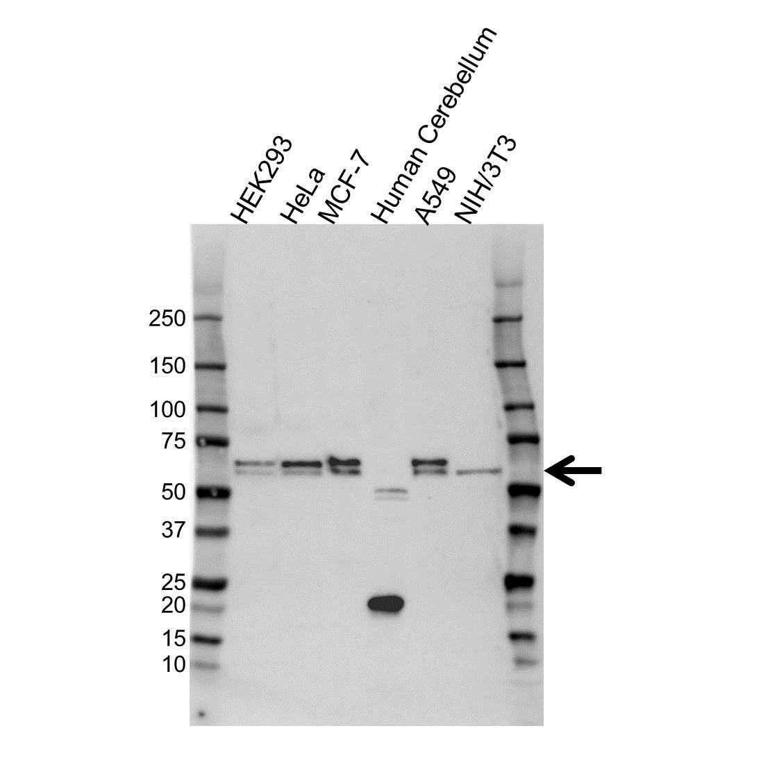 Anti Clusterin Antibody (PrecisionAb Polyclonal Antibody) gallery image 1