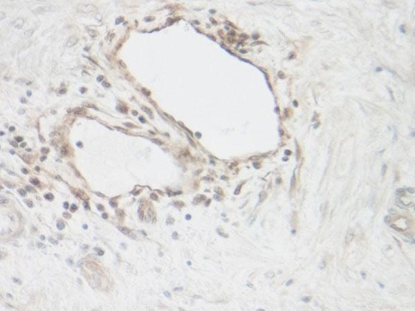Anti Human CNTF Antibody thumbnail image 1