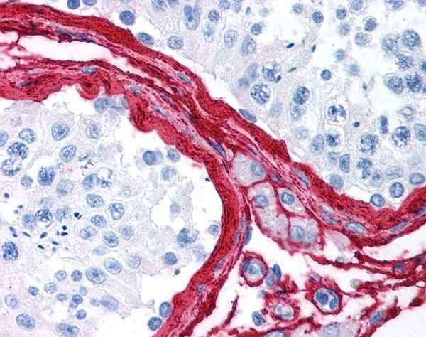 Anti Human Collagen III Antibody thumbnail image 1