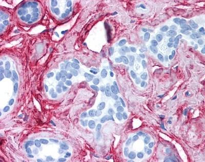 Anti Collagen VI Antibody thumbnail image 1