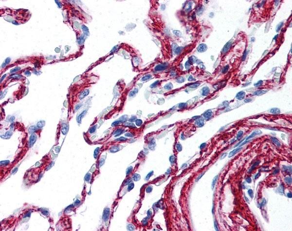 Anti Collagen VI Antibody thumbnail image 2