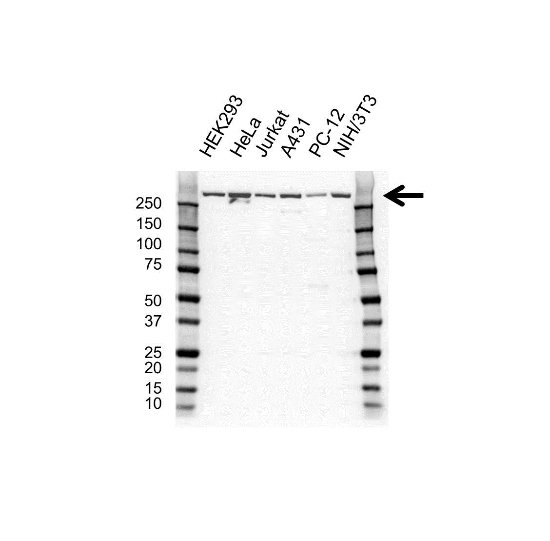 Anti CREB Binding Protein Antibody (PrecisionAb™ Polyclonal Antibody) gallery image 1