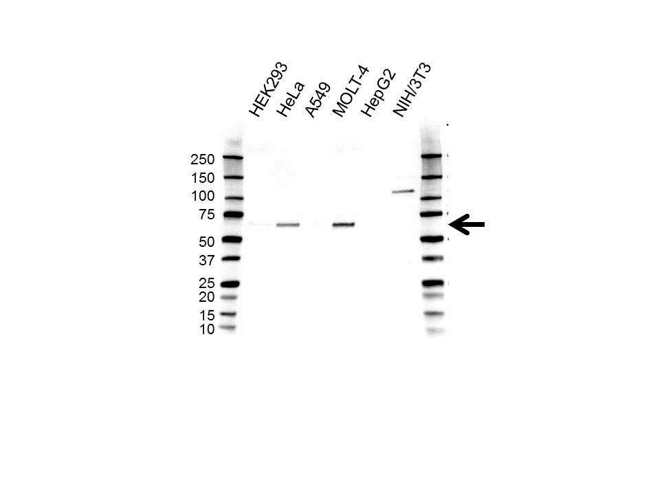 Anti CREB3L1 Antibody (PrecisionAb Polyclonal Antibody) gallery image 1