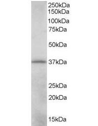 Anti CRKL Antibody gallery image 1