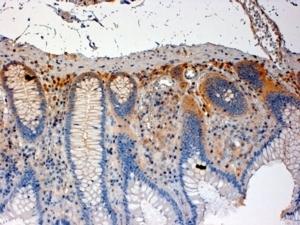 Anti Human CSK (C-Terminal) Antibody thumbnail image 1