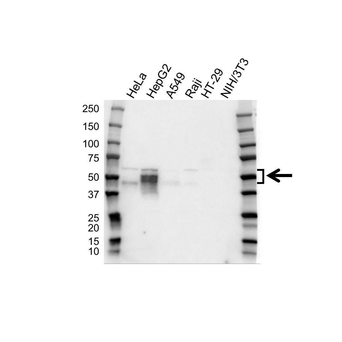 Anti Cxadr Antibody (PrecisionAb™ Polyclonal Antibody) gallery image 1