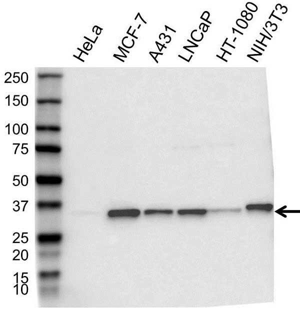 Anti Cyclin D1 Antibody (PrecisionAb Polyclonal Antibody) gallery image 1