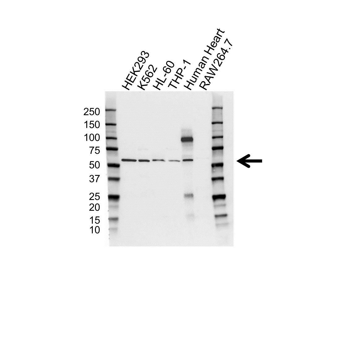 Anti Cytochrome P450 1A1 Antibody (PrecisionAb Polyclonal Antibody) gallery image 1