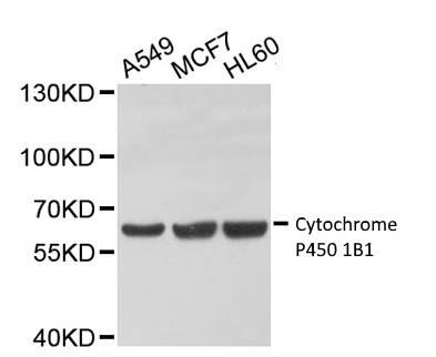 Anti Cytochrome P450 1B1 Antibody thumbnail image 1