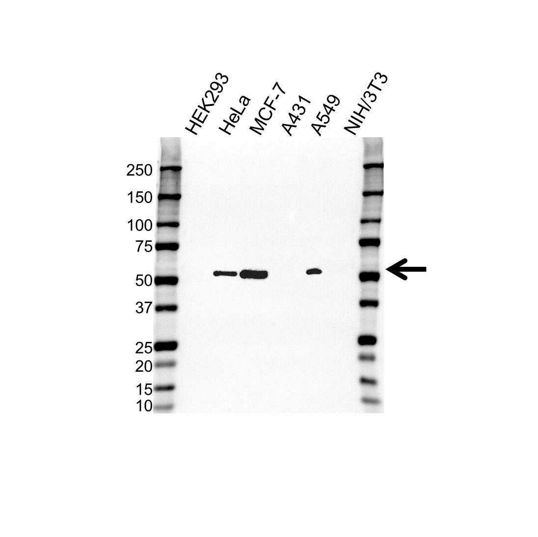 Anti Cytokeratin 8 Antibody (PrecisionAb™ Polyclonal Antibody) gallery image 1