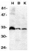 Anti Human DcR3 (N-Terminal) Antibody thumbnail image 1