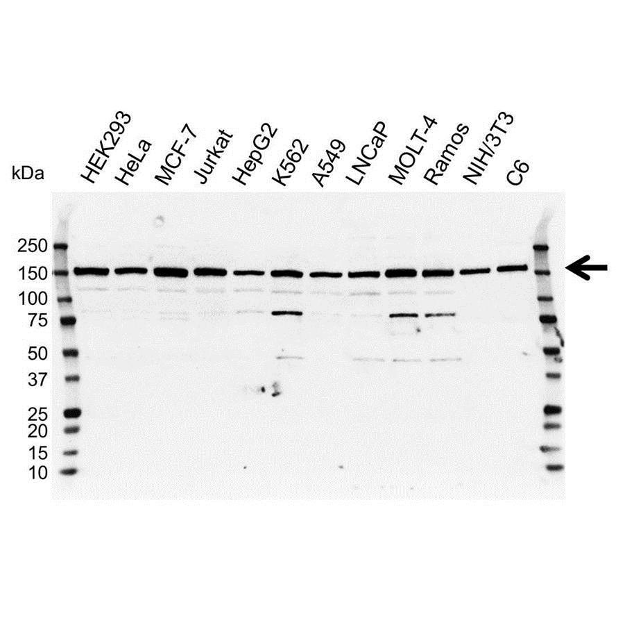 Anti DCTN1 Antibody (PrecisionAb Polyclonal Antibody) gallery image 1