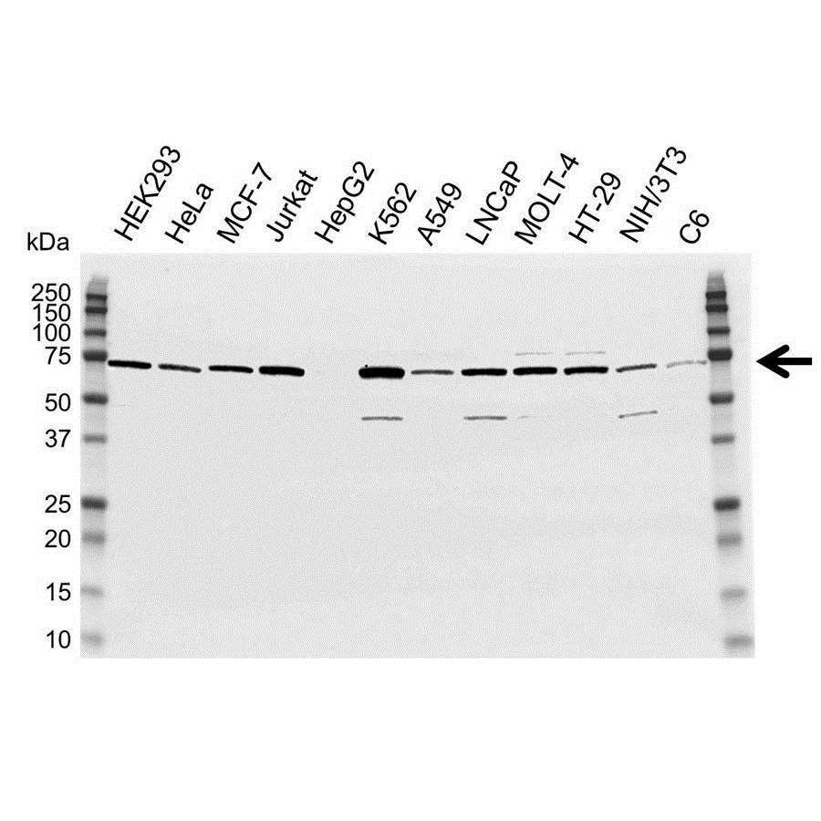 Anti DDX5 Antibody (PrecisionAb™ Polyclonal Antibody) gallery image 1