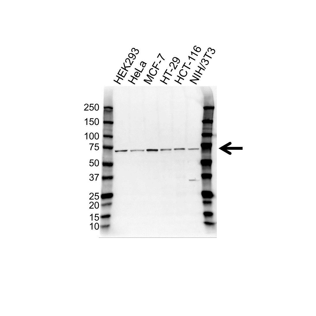 Anti DDX5 Antibody (PrecisionAb Polyclonal Antibody) gallery image 1