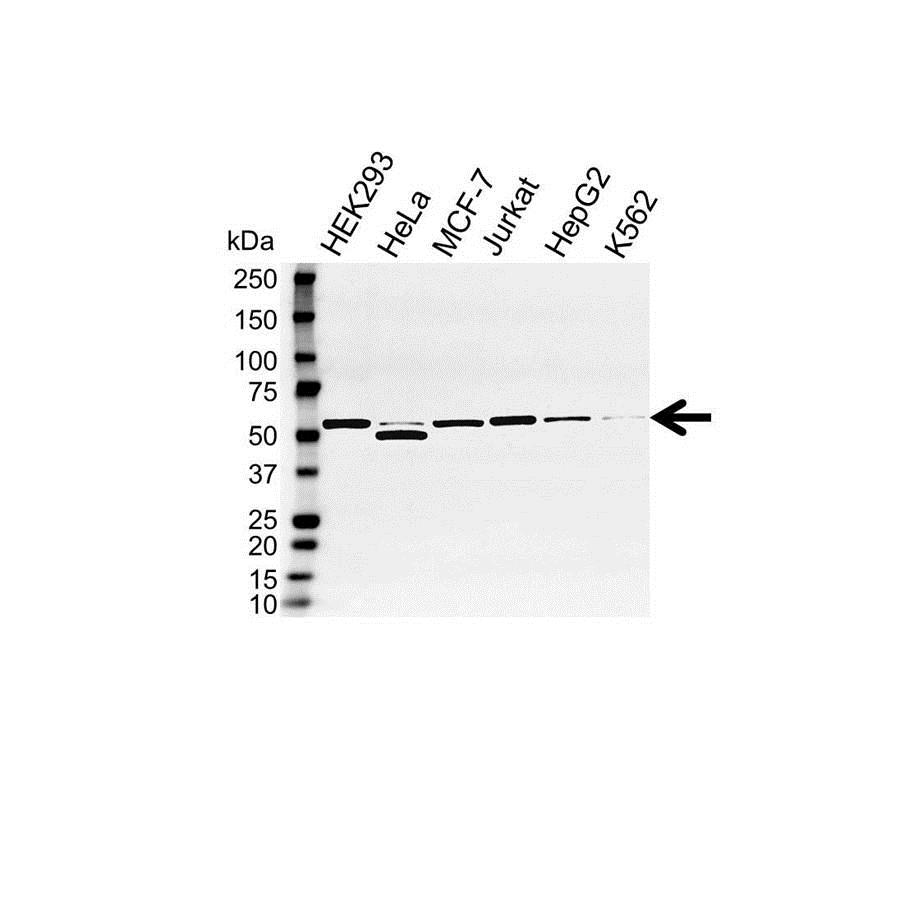 Anti DDX6 Antibody (PrecisionAb™ Polyclonal Antibody) gallery image 1