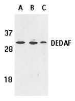 Anti Human DEDAF Antibody thumbnail image 1