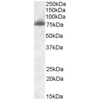 Anti Delta-Like Protein 1 Antibody gallery image 1