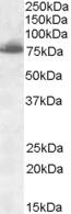 Anti Delta-Like Protein 1 Antibody thumbnail image 1