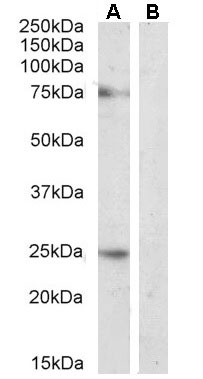 Anti Delta-Like Protein 1 Antibody gallery image 3