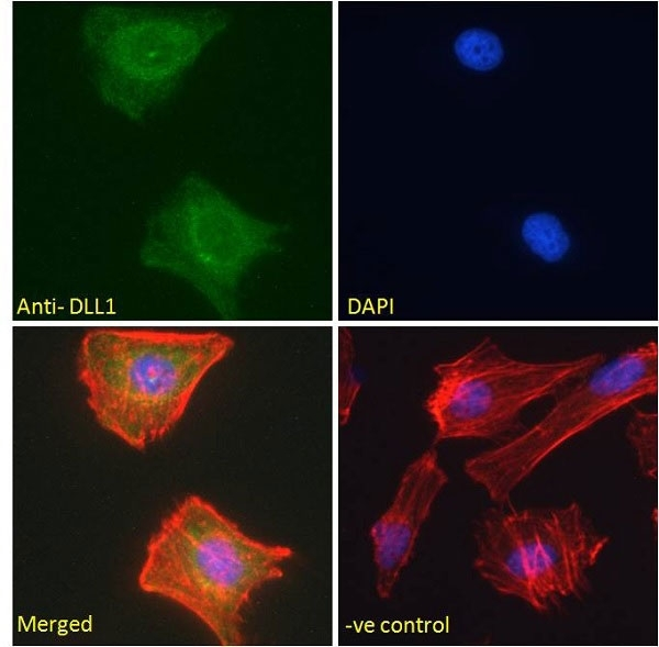 Anti Delta-Like Protein 1 Antibody gallery image 4