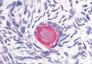 Anti Human Delta-Like Protein 4 Antibody thumbnail image 1