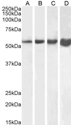 Anti Human Desmin (C-Terminal) Antibody thumbnail image 1