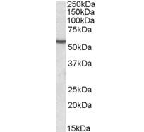 Anti Human Desmin (C-Terminal) Antibody thumbnail image 2