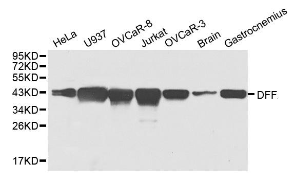 Anti DFF-45 Antibody thumbnail image 1