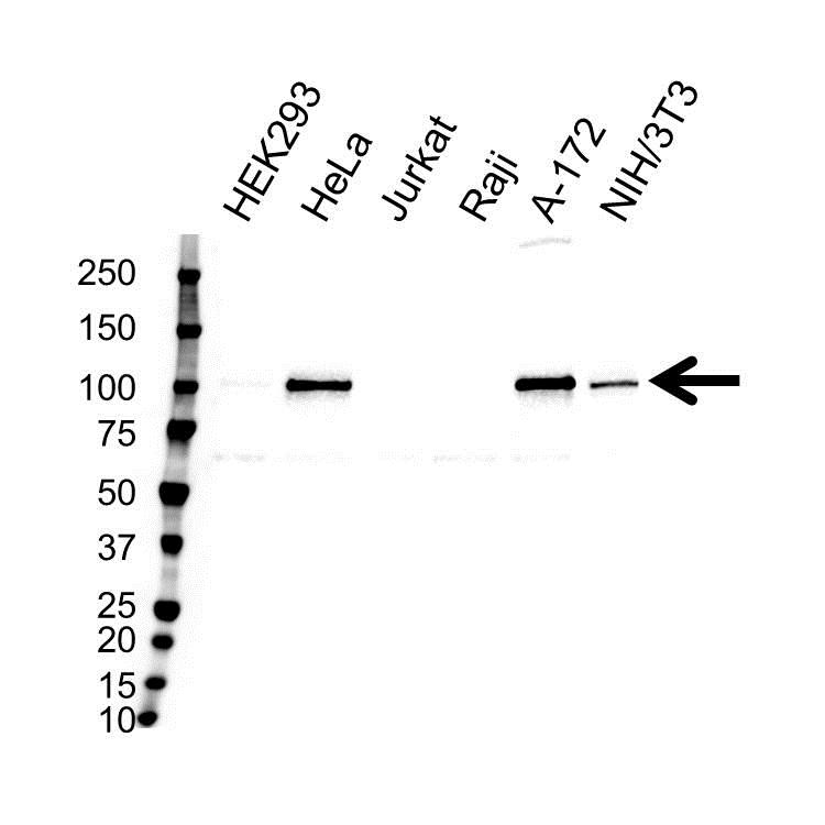 Anti Disabled Homolog 2 Antibody (PrecisionAb Polyclonal Antibody) gallery image 1