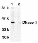 Anti Human DNase II (C-Terminal) Antibody thumbnail image 1
