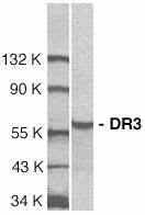 Anti Human DR3 (N-Terminal) Antibody gallery image 1