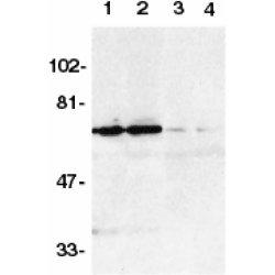 Anti Human DR6 (aa42-56) Antibody gallery image 1