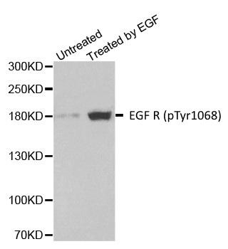 Anti EGF R (pTyr1068) Antibody gallery image 1