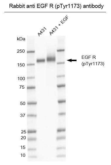 Anti EGF R (pTyr1173) Antibody gallery image 1