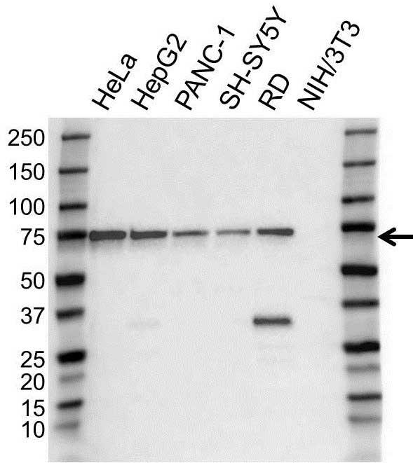 Anti EIF2AK2 Antibody (PrecisionAb Polyclonal Antibody) gallery image 1