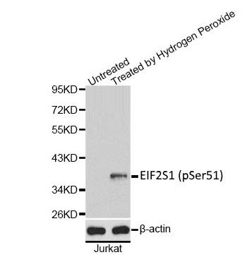 Anti EIF2S1 (pSer51) Antibody gallery image 1