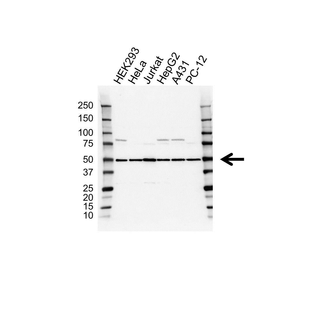 Anti EIF2S2 Antibody (PrecisionAb Polyclonal Antibody) gallery image 1