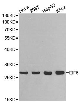 Anti EIF6 Antibody gallery image 1