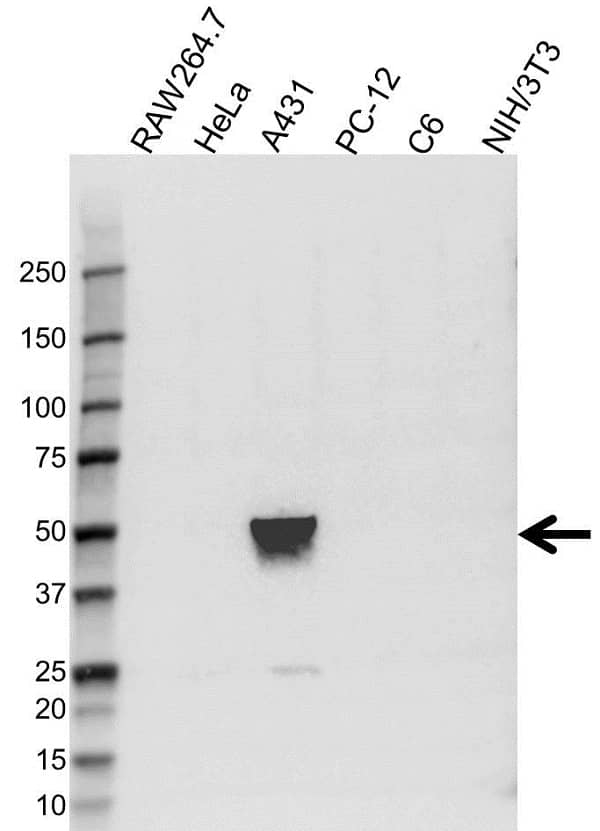 Anti ELF3 Antibody (PrecisionAb Polyclonal Antibody) gallery image 1