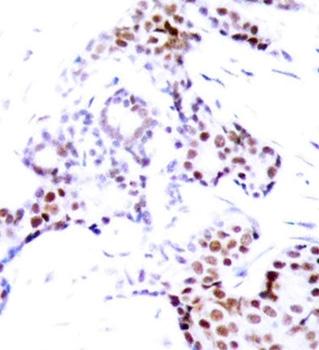 Anti ELK-1 (pSer389) Antibody thumbnail image 2